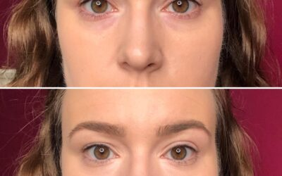 How do I cover dark circles? MAKEUP TIPS